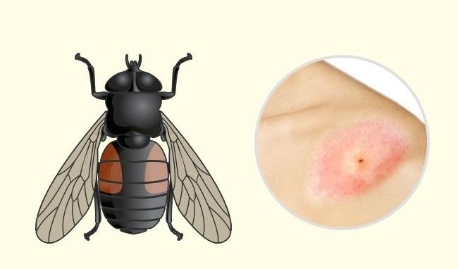 8 10 روزیاتو: ۱۰ جای نیش حشرات که هر کسی باید آنها را بشناسد اخبار IT
