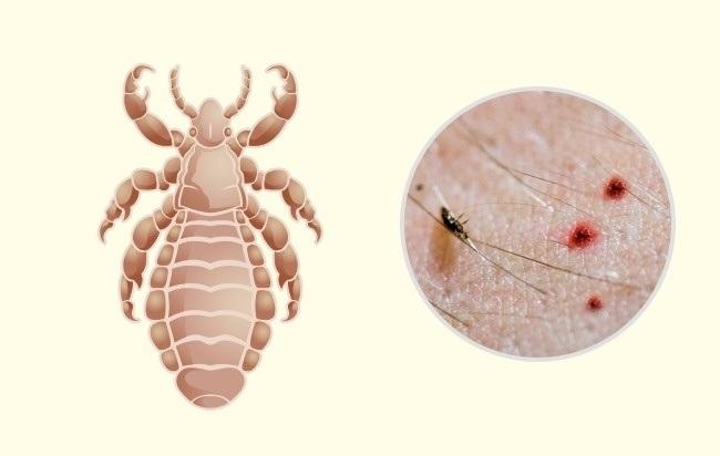9 10 روزیاتو: ۱۰ جای نیش حشرات که هر کسی باید آنها را بشناسد اخبار IT