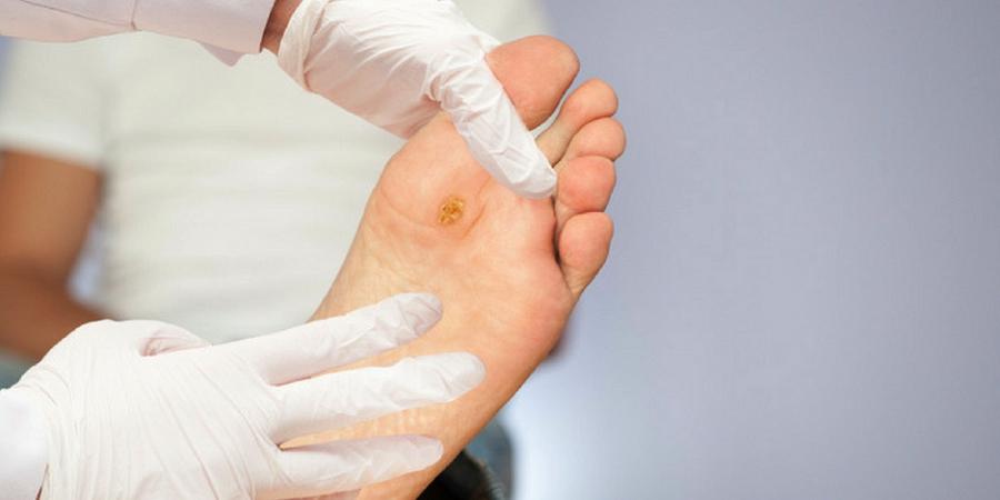 هر آنچه که باید درباره قارچ پوستی و راه های پیشگیری از آن بدانید - روزیاتو
