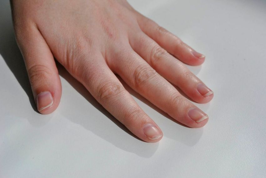 نشانه های ابتلا به سرطان پوست