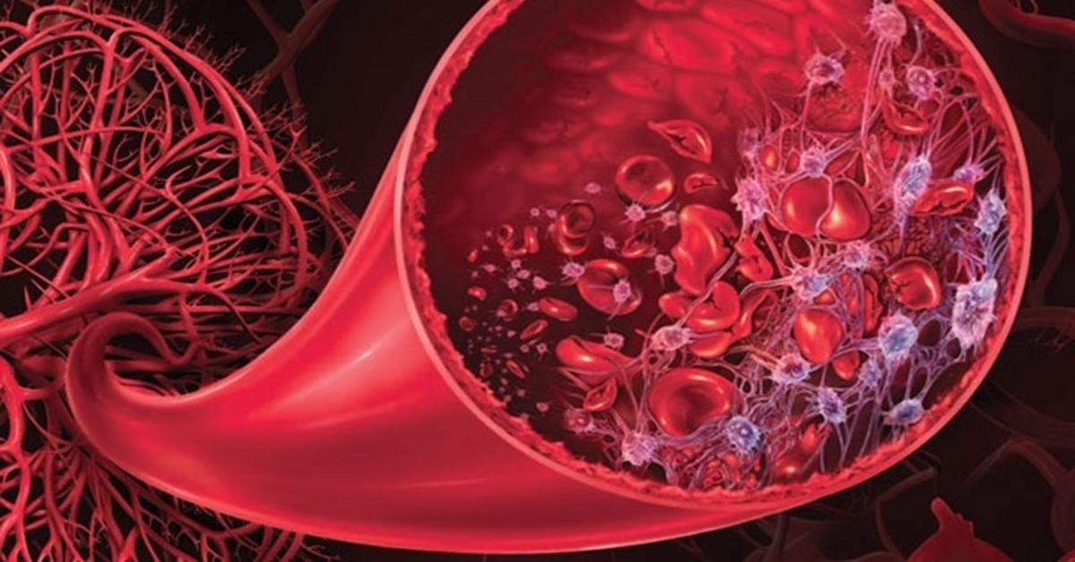 Webp.net resizeimage 15 روزیاتو: هر آنچه که باید در مورد سندروم همولیتیک اورمیک (HUS) و درمان آن بدانید اخبار IT