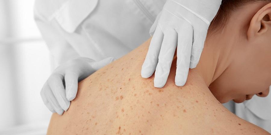 نگاهی به ۱۵ مورد از رایج ترین تصورات نادرست درباره سرطان پوست