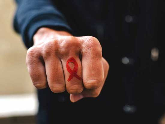 بیماری ایدز