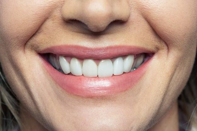 نشانه های بیماری در دهان و دندان