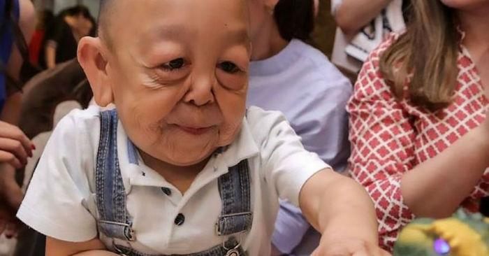 بنجامین باتن در دنیای واقعی؛ پسربچه ۶ ساله قزاق که ظاهر یک پیرمرد را دارد