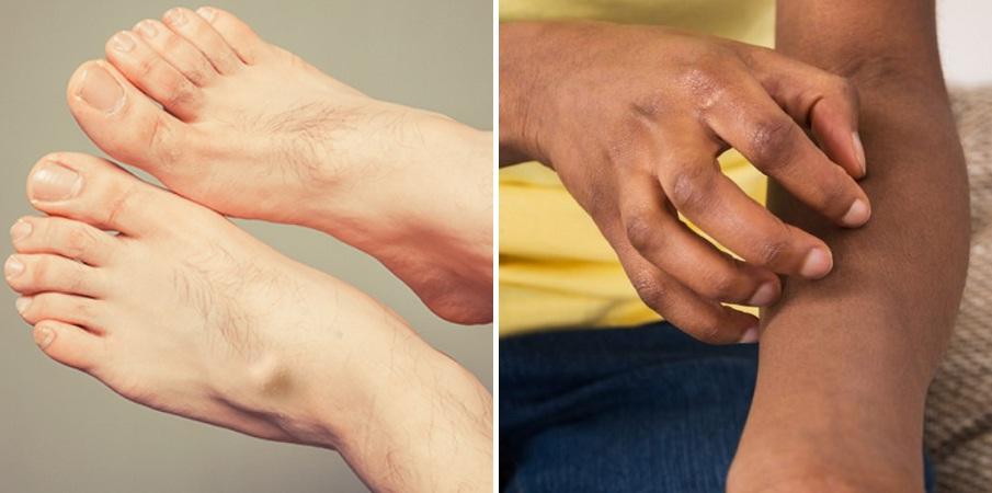 ۱۰ مشکل پوستی ای که نشانه بیماری های مهمی هستند