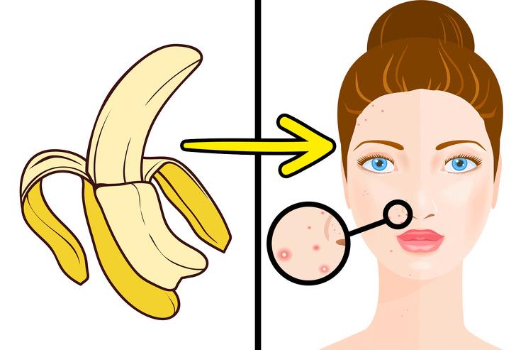 کاربردهای جالب و عجیب پوست موز که شاید نمیدانستید