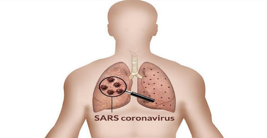 سندرم حاد تنفسی (SARS)