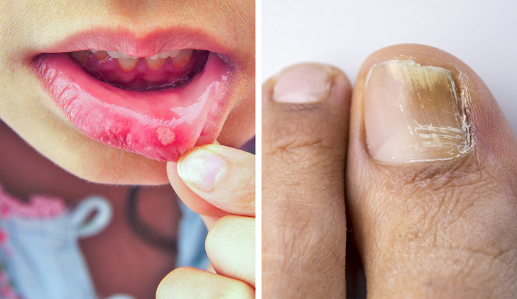 عوارض مصرف آنتیبیوتیک