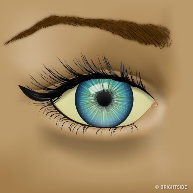 رابطه وضعیت چشم ها و سلامت بدن