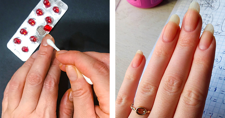 درمان طبیعی شکنندگی ناخن ها