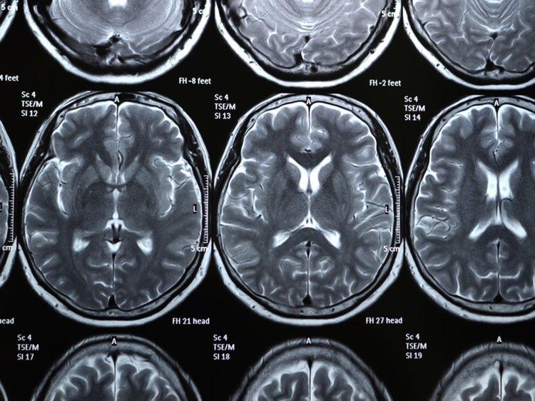 11 حقیقت عجیب و بسیار جالب در مورد مغز انسان