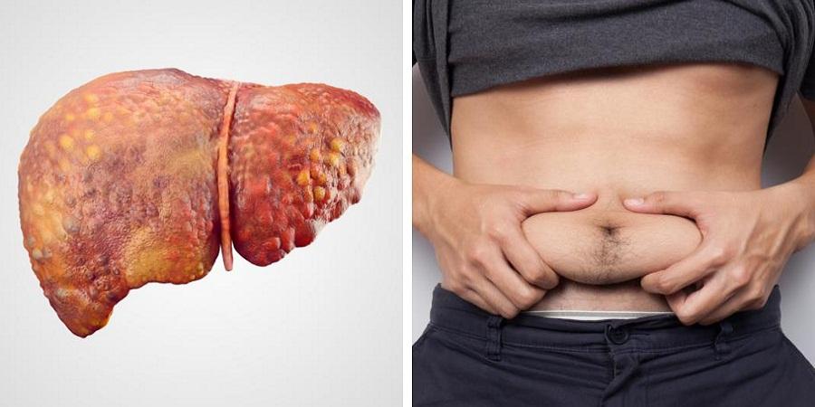 با نشانه های «کبد چرب»، شایع ترین بیماری کبدی آشنا شوید؛ از بزرگی شکم تا خستگی دائمی