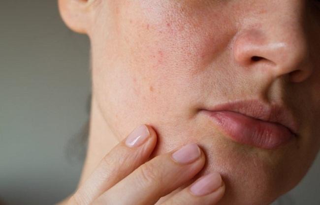 مشکلات پوستی در زمستان