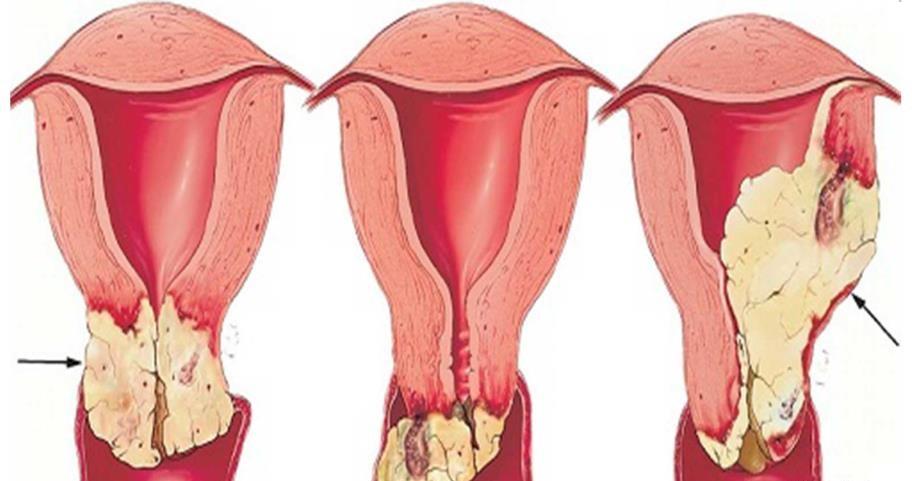 سرطان دهانه رحم