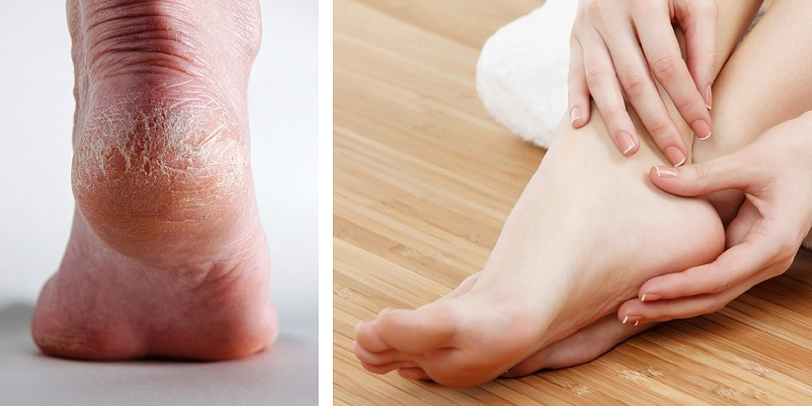 با ۱۰ روش ساده و طبیعی برای رفع خشکی و ترک پا آشنا شوید