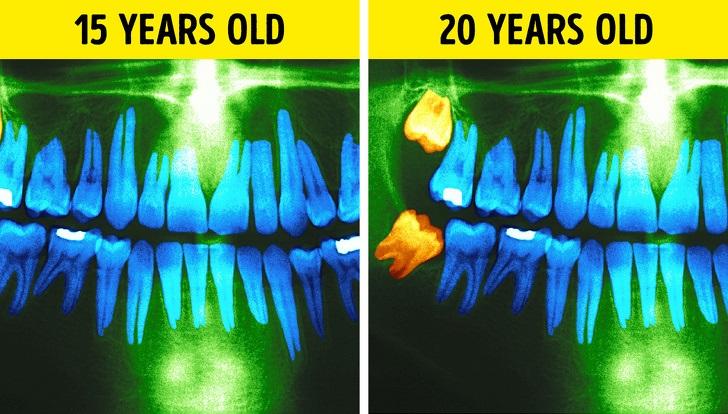 تغییرات بدنی ناشی از بالا رفتن سن