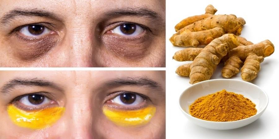 چند راهکار طبیعی و مؤثر برای از بین بردن «سیاهی زیر چشم»