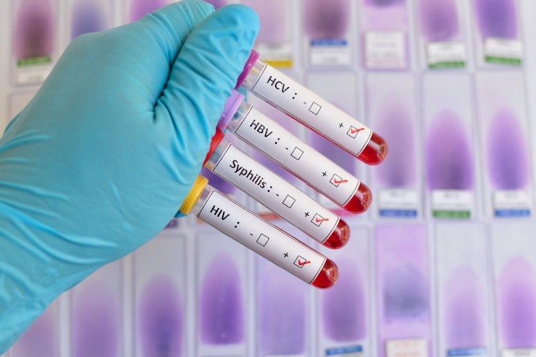 درمان ایدز و HIV