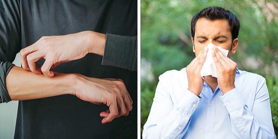 ۷ نشانه ای که می گویند آلرژی دارید حتی اگر خودتان اینطور فکر نمی کنید