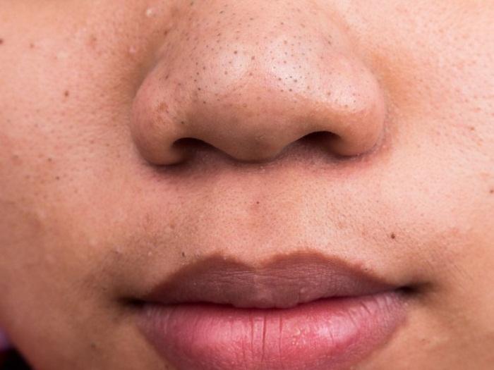 باورهای غلط درباره منافذ پوست