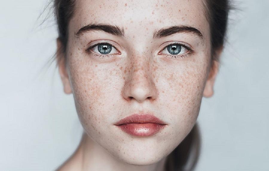 از بین بردن لکههای پوست دست و صورت