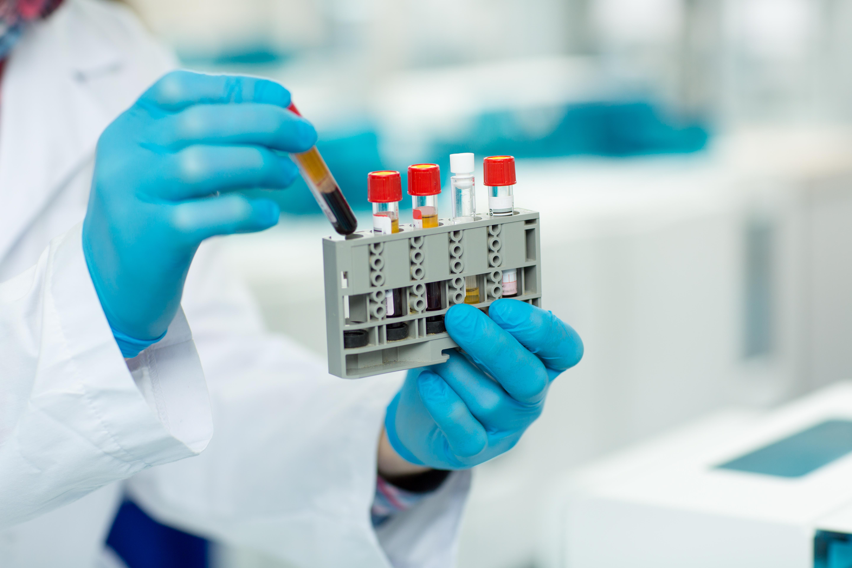 هر آنچه که باید در مورد تست ایزو آنزیم های CPK و تفسیر نتایج آن بدانید