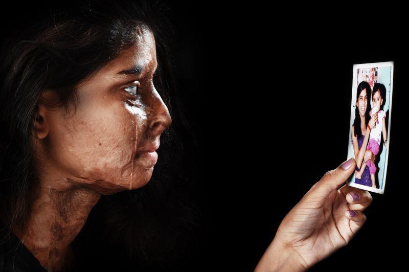 استفاده از پوست مصنوعی برای پیوند به قربانیان اسید پاشی و سوختگی