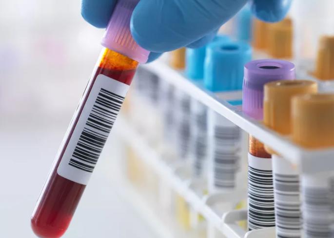 تست ایزو آنزیم های CPK (کراتین فسفوکیناز)