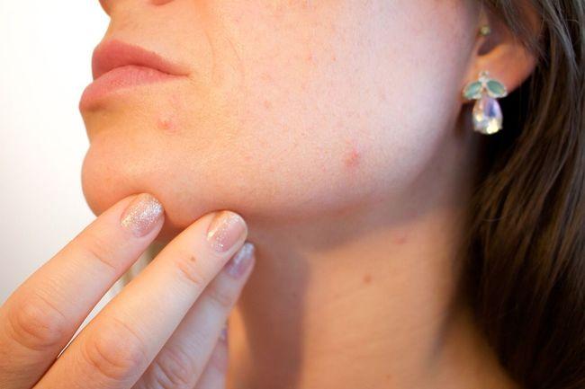 11 استفاده غیرمعمول از قرص آسپرین؛ از درمان شوره سر و موهای زیر پوستی تا رفع زنگزدگی