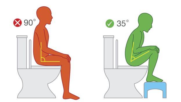 کدام توالت برای سلامتی ما بهتر است؛ فرنگی یا سنتی؟7