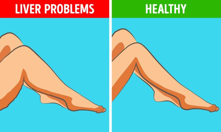 تغییرات شایع در پاها