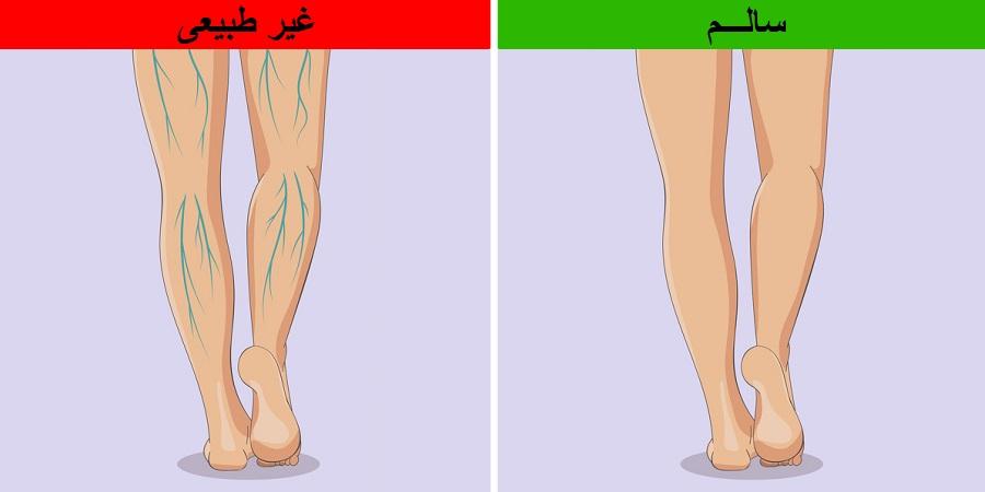 ۶ تغییر شایع در پاها که از مشکلی جدی در بدن خبر می دهند