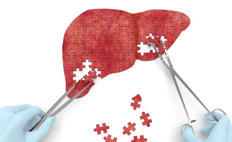 تاثیر آلودگی هوا در ابتلا به بیماریهای فیبروز کبدی، سیروز کبدی و نارسایی کبد