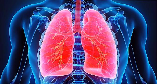 بیماریهای ریوی در اثر آلودگی هوا
