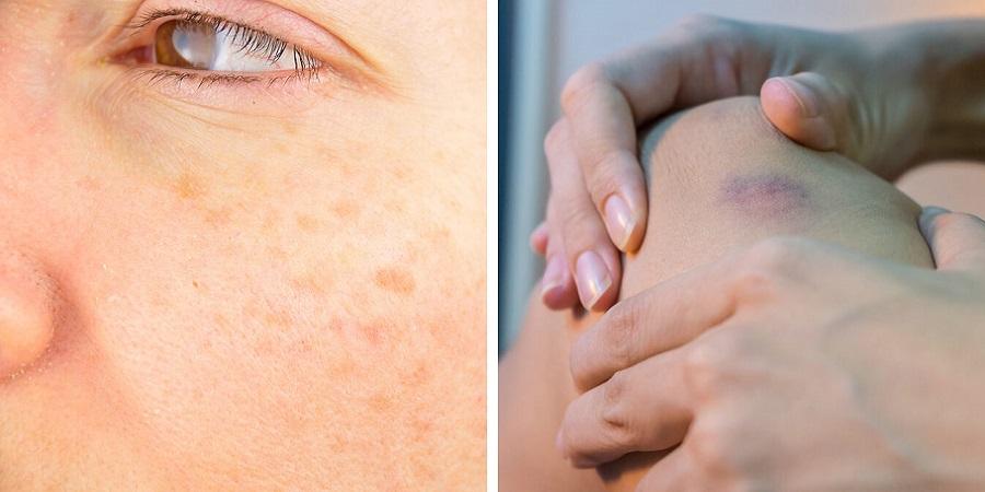 نشانه هایی که می گویند پوست تان دچار پیری زودرس شده
