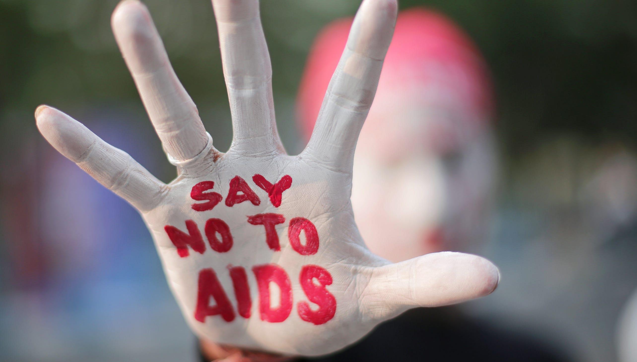 پیشگیری اورژانسی از ایدز