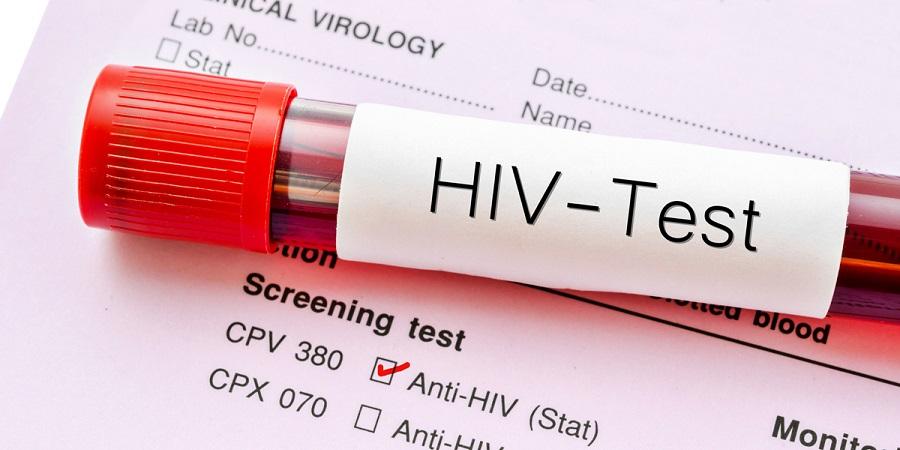 بعد از یک رابطه جنسی بدون کاندوم چه زمانی باید آزمایش ایدز داد؟