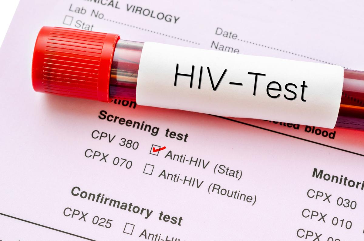 آزمایش ایدز بعد از رابطه جنسی