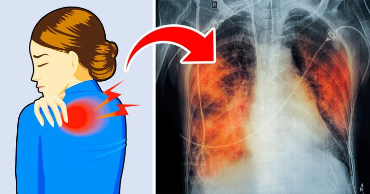 نشانه های بیماری ریه