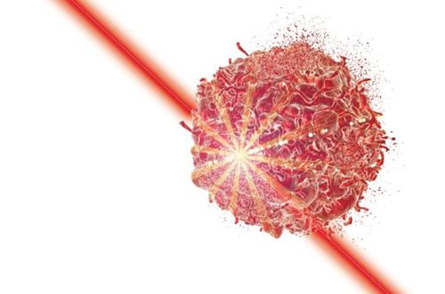 لیزر با فوتون تقویت شده؛ روش پرتو درمانی جدید و بسیار موثر در درمان سرطان