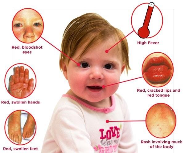 بیماری کاوازاکی در کودکان