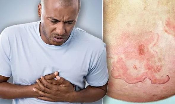 ضایعه پوستی نشانه حمله قلبی