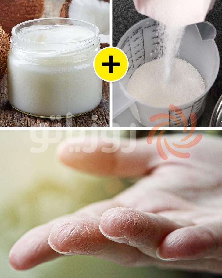 رفع خشکی پوست