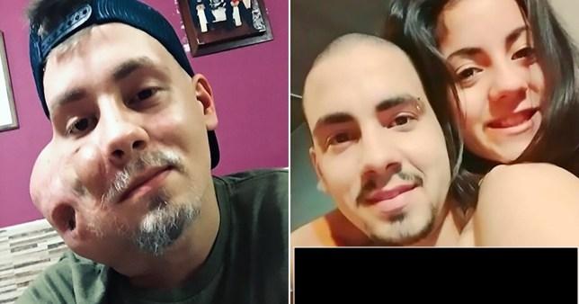 سرطان صورت