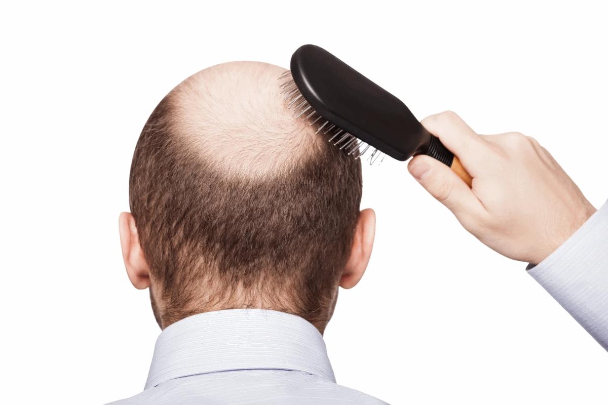 درمان ریزش مو و طاسی