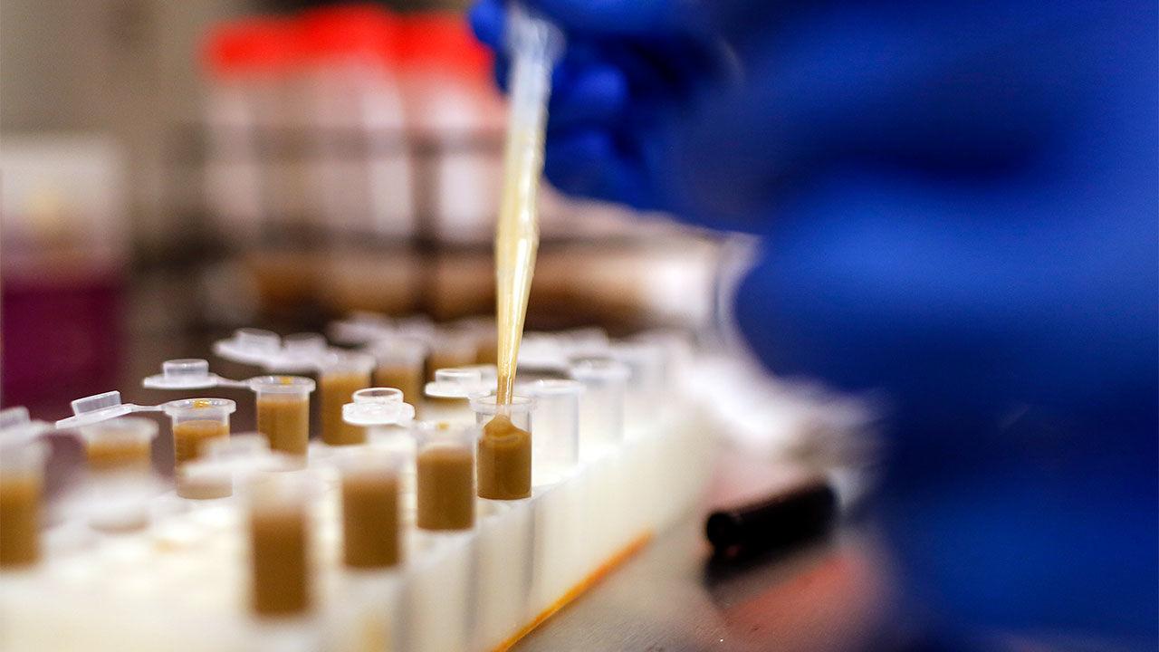 پیوند مدفوعی برای درمان مستی ناشی از سندرم روده تخمیر کننده
