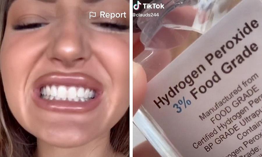 ترند جدید شبکه اجتماعی تیک تاک؛ سفید کردن دندان با وایتکس!