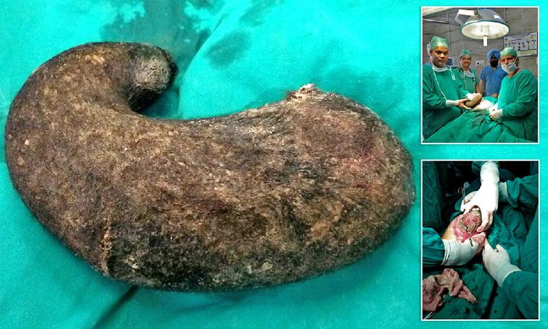 بیرون کشیدن توپ مویی ۷ کیلوگرمی از معده دختر مبتلا به «سندروم راپونزل» + ویدیو