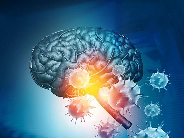 آسیب ویروس کرونا به مغز